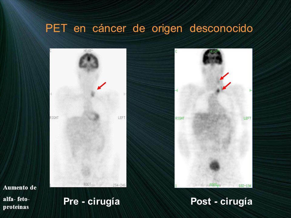 PET en cáncer de origen desconocido