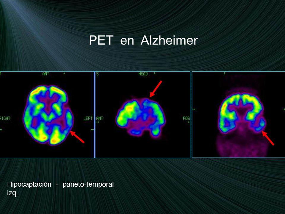 PET en Alzheimer Hipocaptación - parieto-temporal izq.