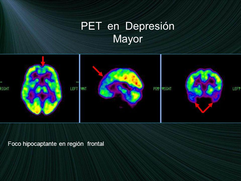 PET en Depresión Mayor Foco hipocaptante en región frontal