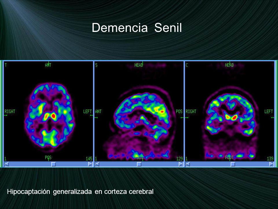 Demencia Senil Hipocaptación generalizada en corteza cerebral