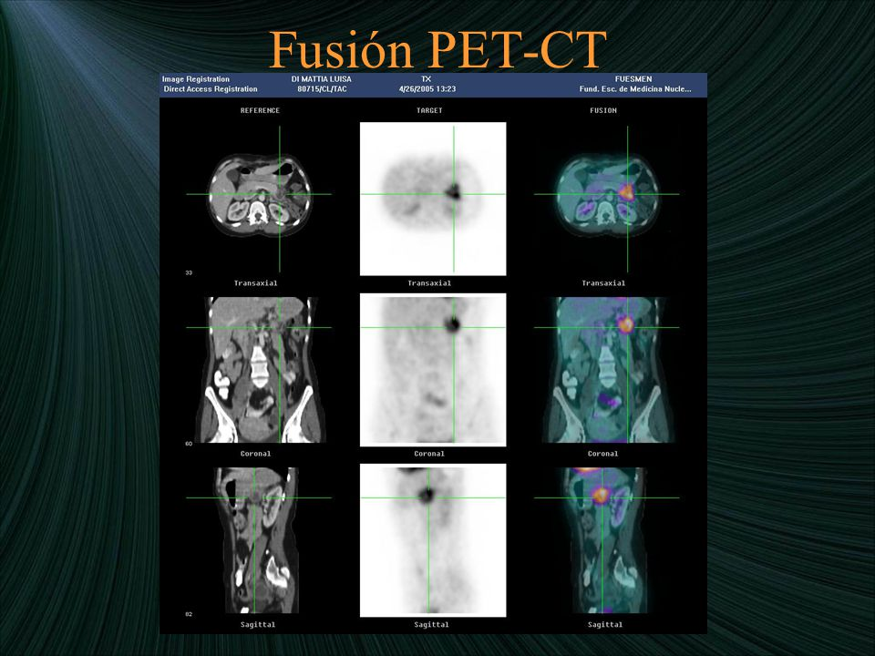 Fusión PET-CT