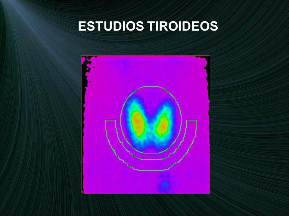 ESTUDIOS TIROIDEOS