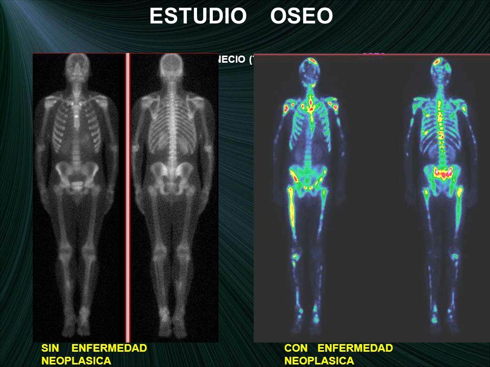 ESTUDIO OSEO SIN ENFERMEDAD NEOPLASICA CON ENFERMEDAD NEOPLASICA