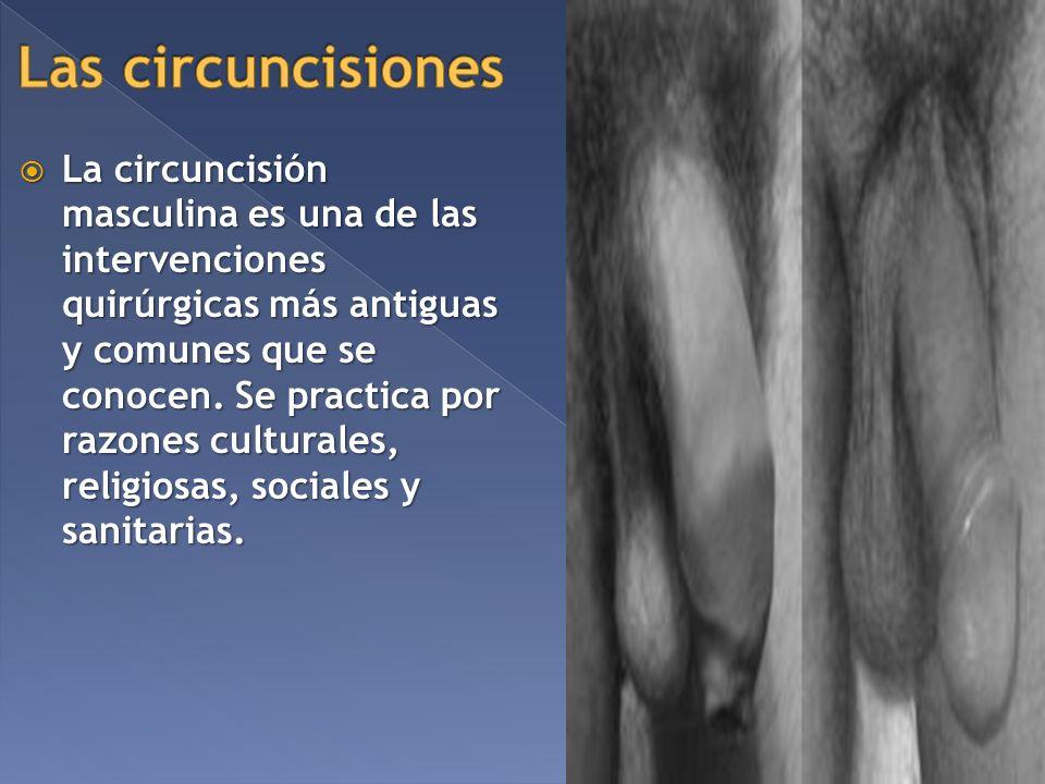 Las circuncisiones
