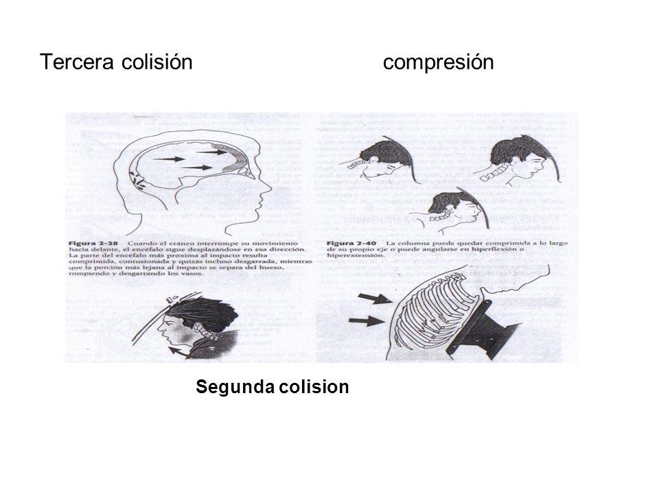 Tercera colisión compresión