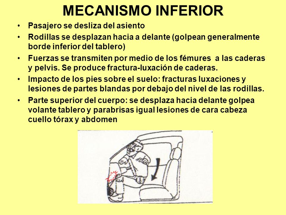 MECANISMO INFERIOR Pasajero se desliza del asiento