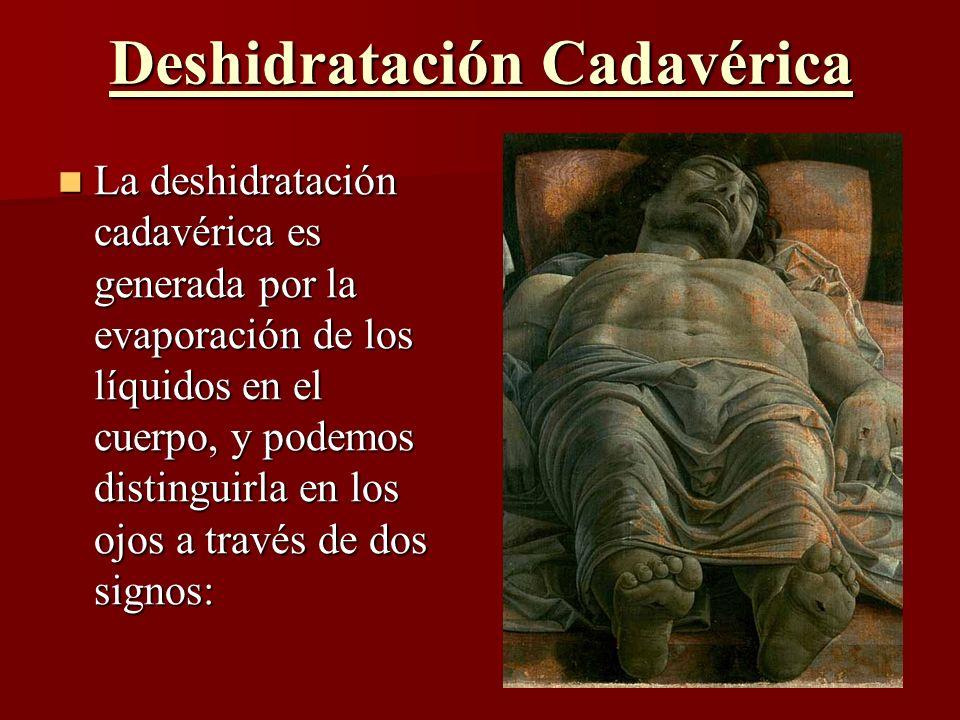 Deshidratación Cadavérica