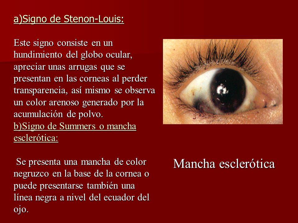 Mancha esclerótica a)Signo de Stenon-Louis: