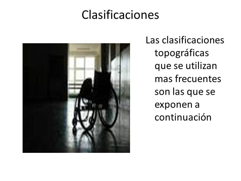 Clasificaciones Las clasificaciones topográficas que se utilizan mas frecuentes son las que se exponen a continuación.