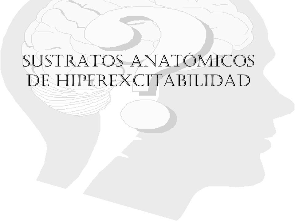Sustratos anatómicos de hiperexcitabilidad