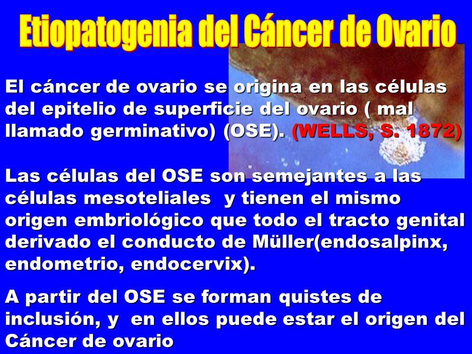 El cáncer de ovario se origina en las células del epitelio de superficie del ovario ( mal llamado germinativo) (OSE). (WELLS, S. 1872)