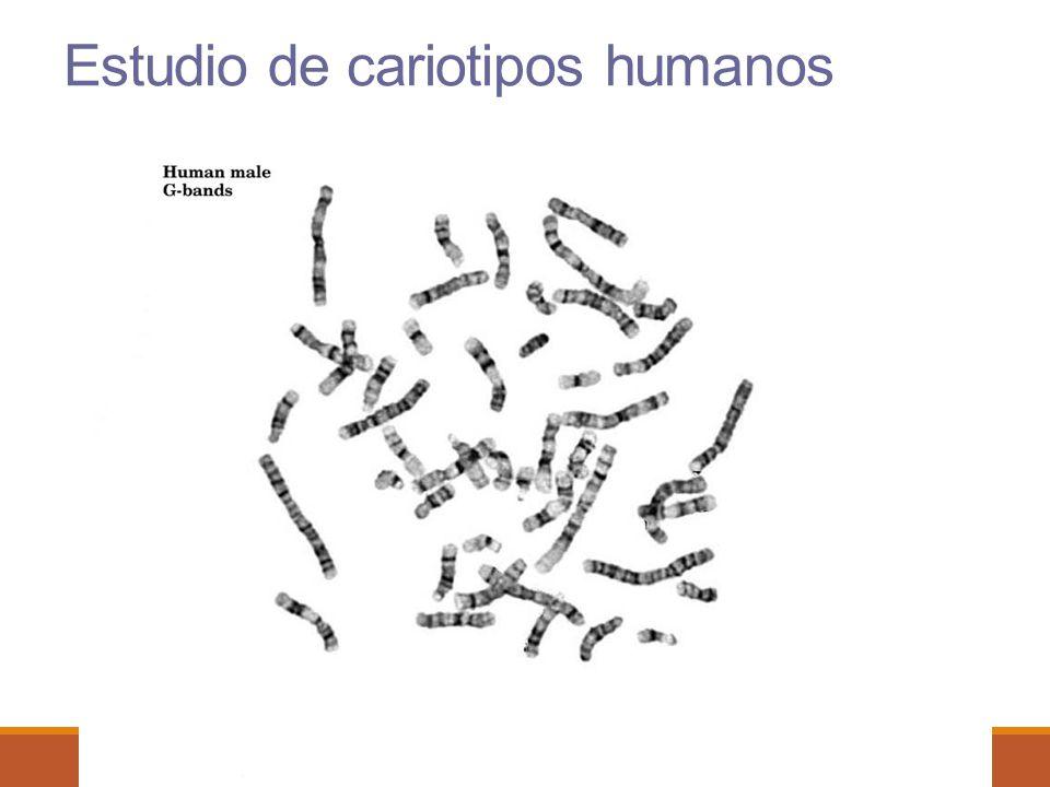 Estudio de cariotipos humanos