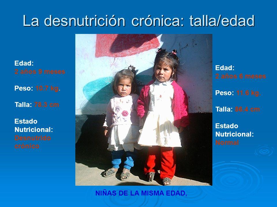 La desnutrición crónica: talla/edad