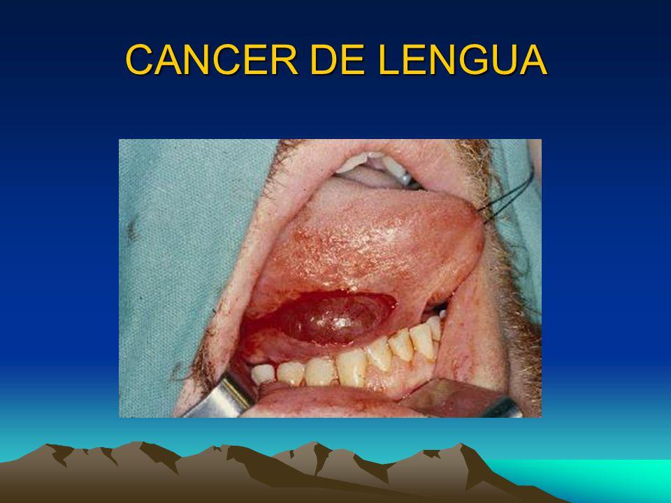 CANCER DE LENGUA