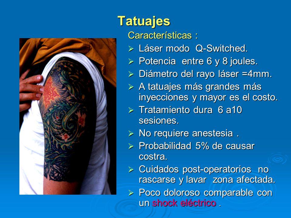 Tatuajes Características : Láser modo Q-Switched.