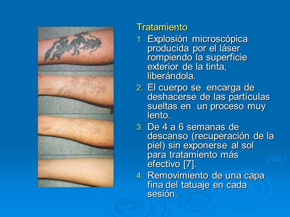Tratamiento Explosión microscópica producida por el láser rompiendo la superficie exterior de la tinta, liberándola.