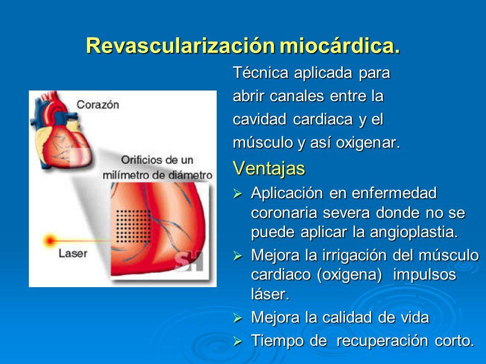 Revascularización miocárdica.