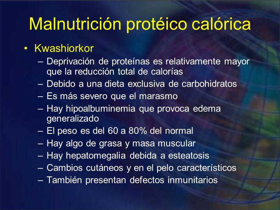 Malnutrición protéico calórica