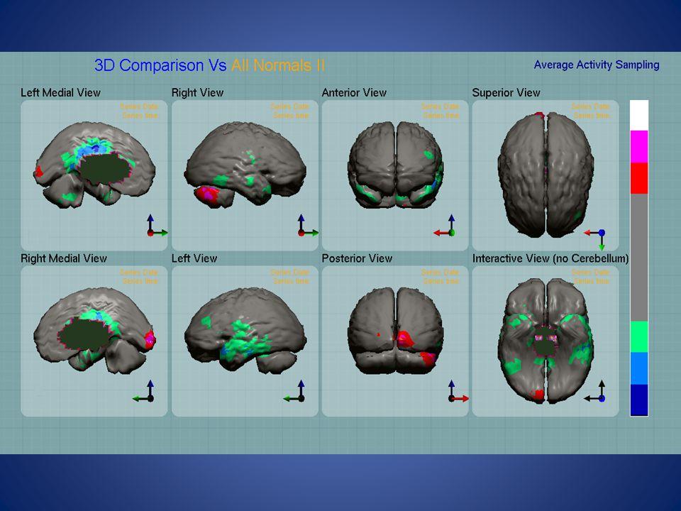 En pacientes esquizofrénicos de primer brote y sin tratamiento previo