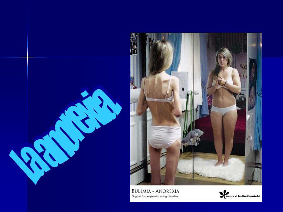 La anorexia.