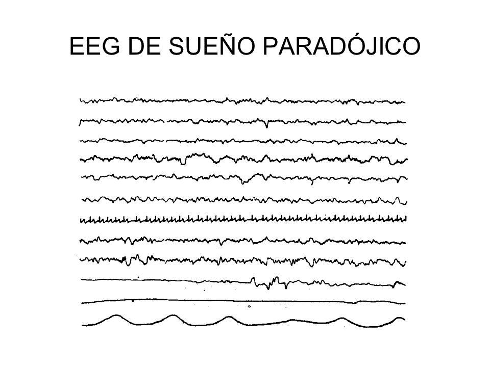 EEG DE SUEÑO PARADÓJICO