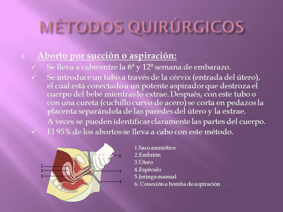 MÉTODOS QUIRÚRGICOS Aborto por succión o aspiración: