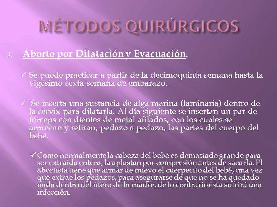 MÉTODOS QUIRÚRGICOS Aborto por Dilatación y Evacuación.