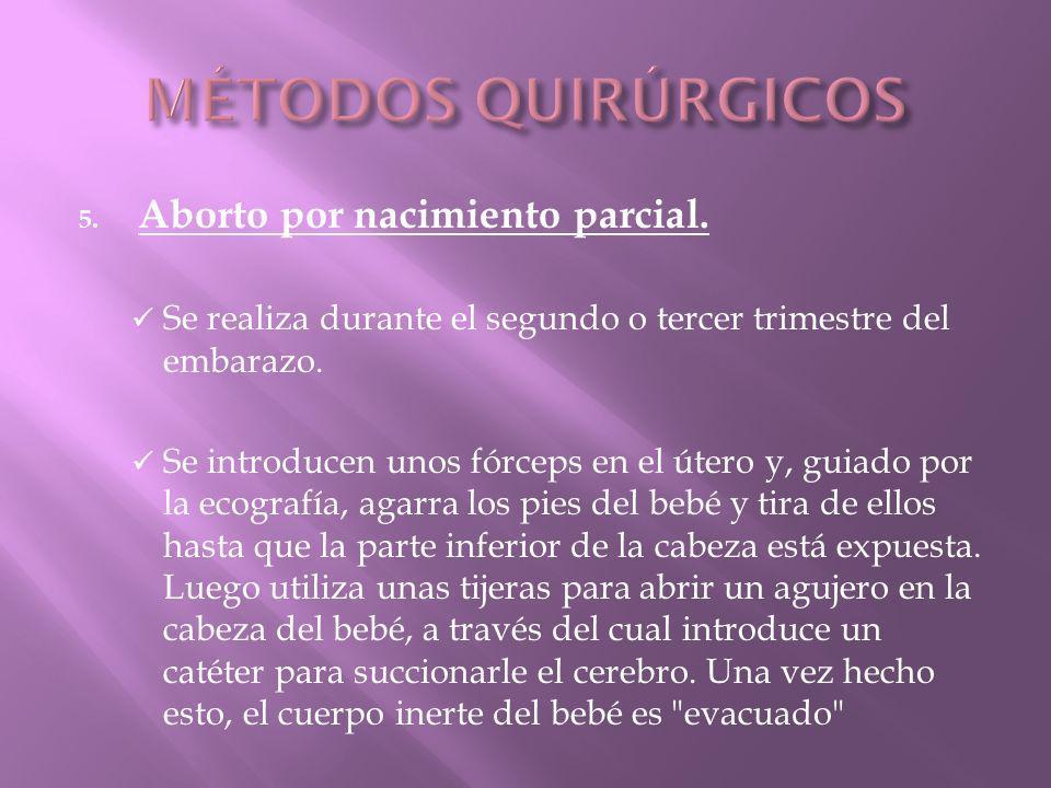 MÉTODOS QUIRÚRGICOS Aborto por nacimiento parcial.