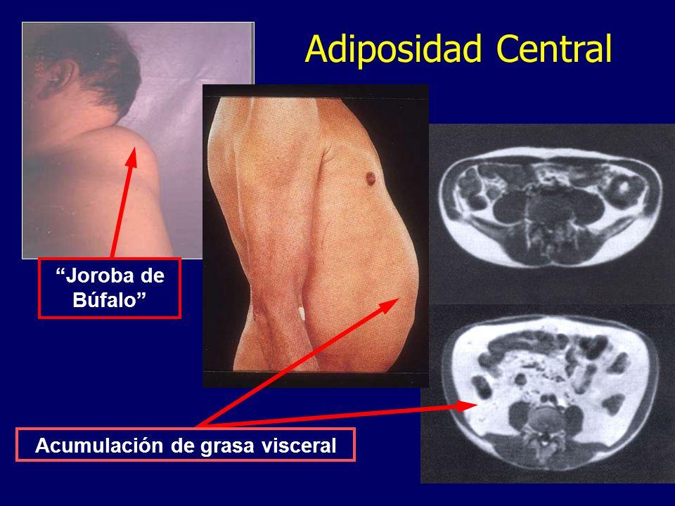 Acumulación de grasa visceral