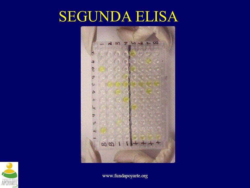 SEGUNDA ELISA www.fundapoyarte.org