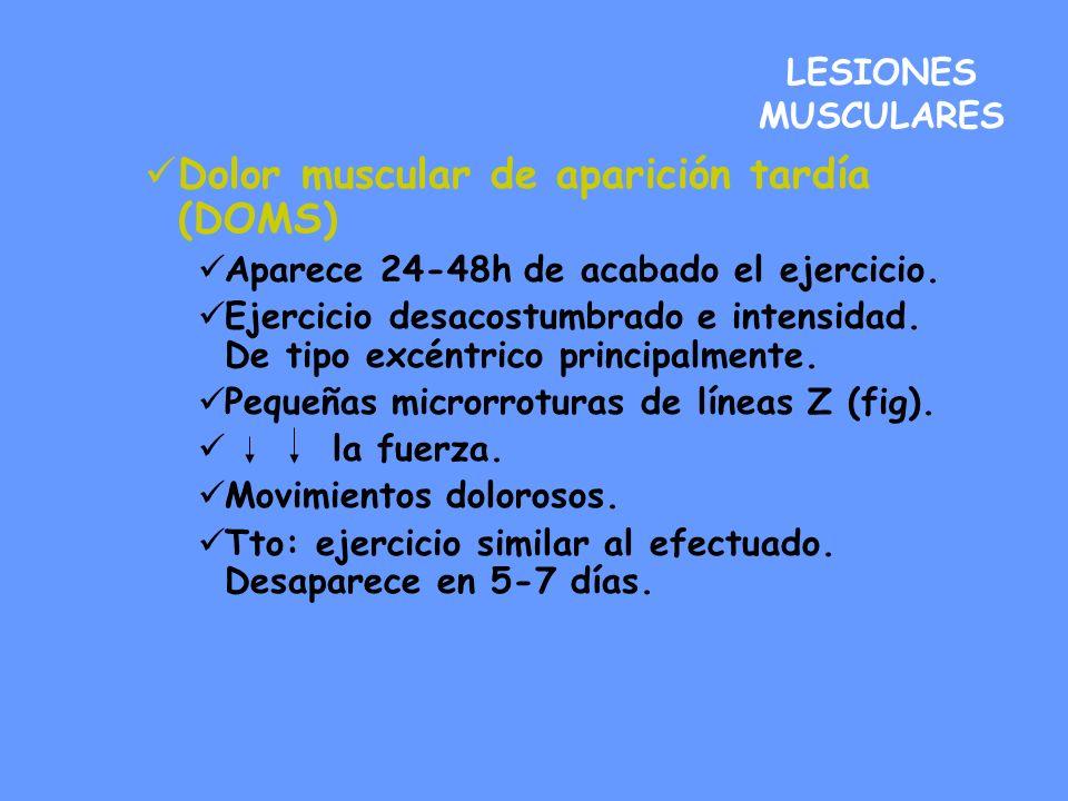 Dolor muscular de aparición tardía (DOMS)