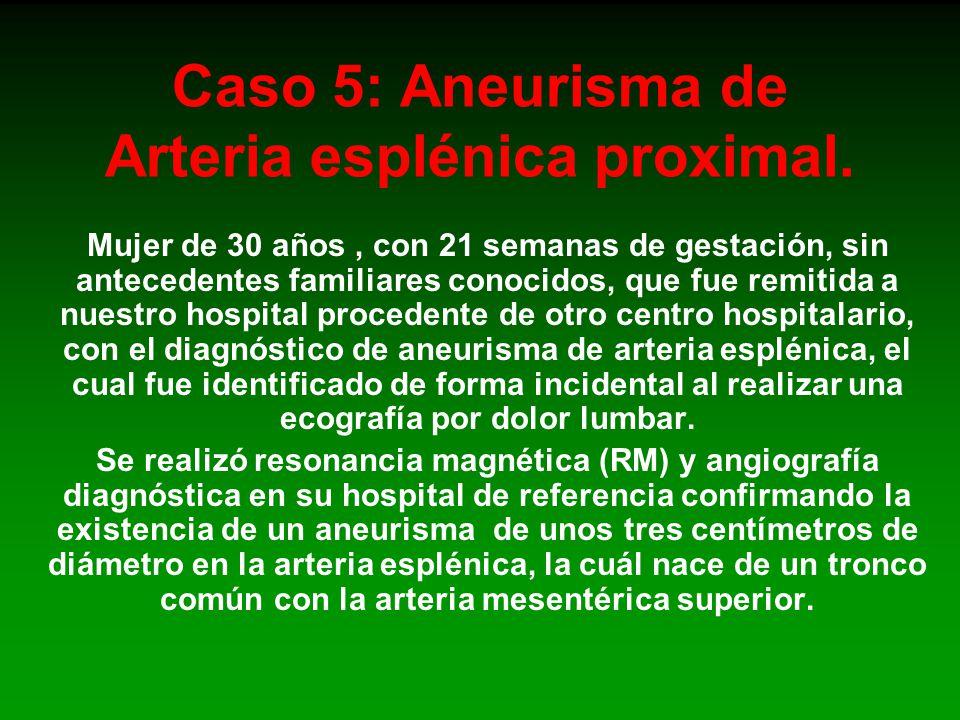Caso 5: Aneurisma de Arteria esplénica proximal.