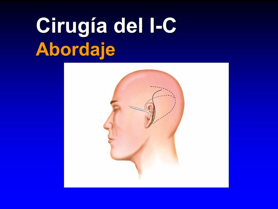 Cirugía del I-C Abordaje