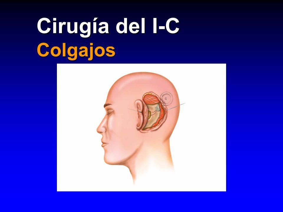 Cirugía del I-C Colgajos