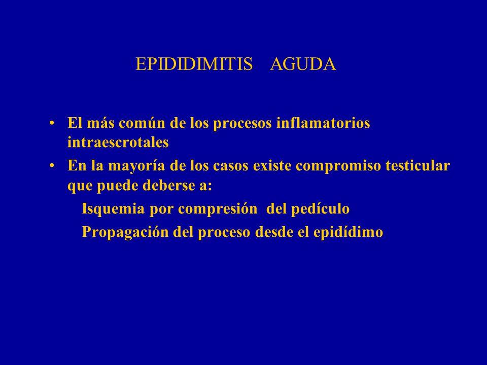 EPIDIDIMITIS AGUDA El más común de los procesos inflamatorios intraescrotales.