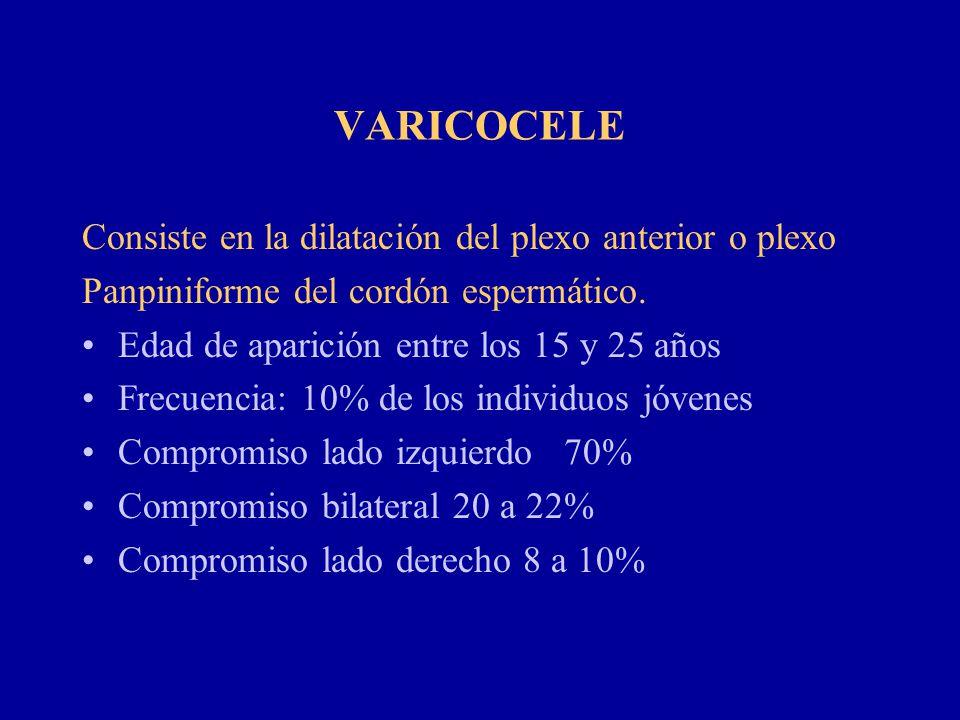 VARICOCELE Consiste en la dilatación del plexo anterior o plexo