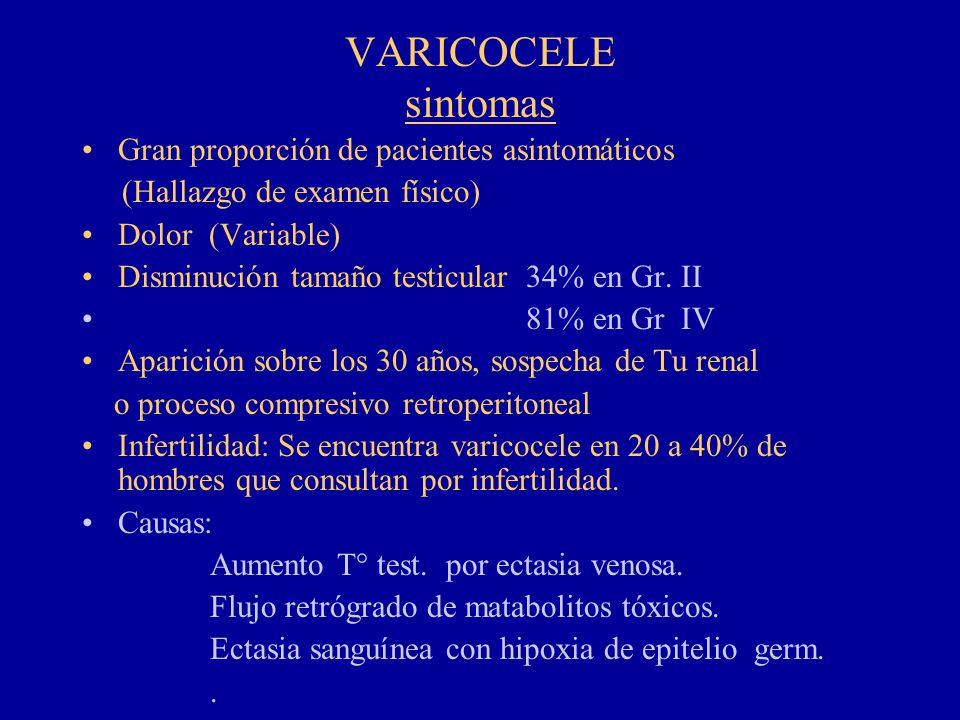VARICOCELE sintomas Gran proporción de pacientes asintomáticos