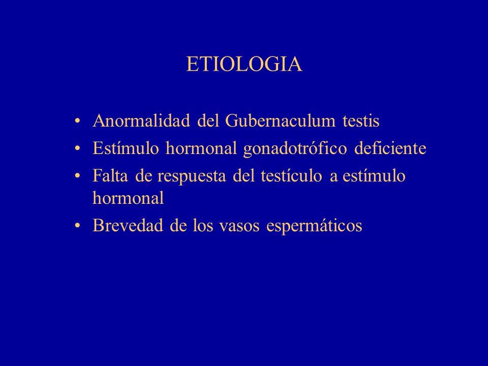 ETIOLOGIA Anormalidad del Gubernaculum testis