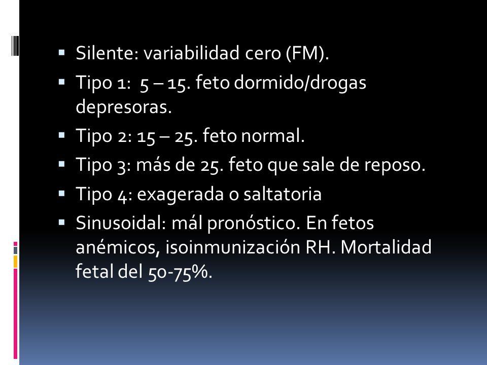 Silente: variabilidad cero (FM).