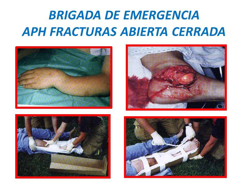 BRIGADA DE EMERGENCIA APH FRACTURAS ABIERTA CERRADA