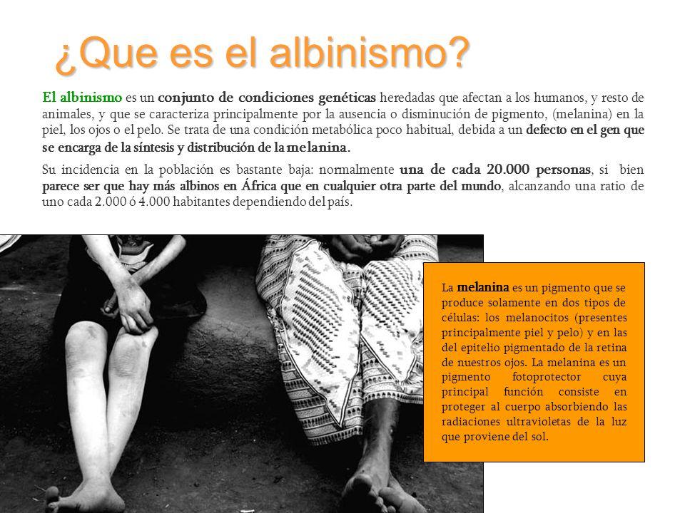 ¿Que es el albinismo