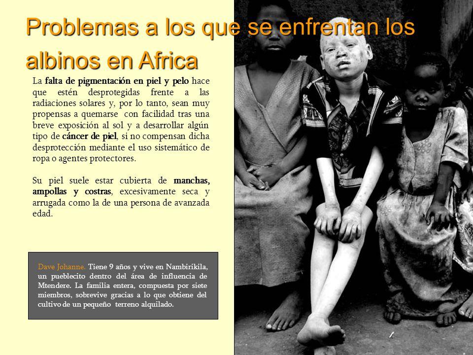 Problemas a los que se enfrentan los albinos en Africa