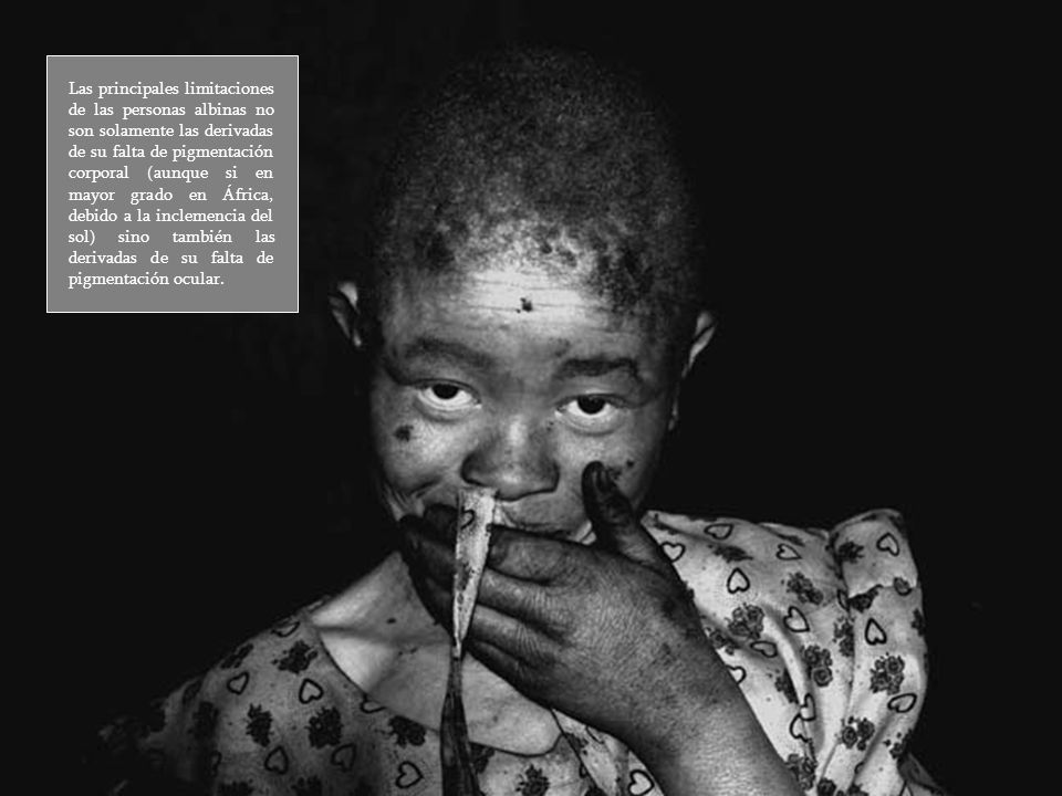 Las principales limitaciones de las personas albinas no son solamente las derivadas de su falta de pigmentación corporal (aunque si en mayor grado en África, debido a la inclemencia del sol) sino también las derivadas de su falta de pigmentación ocular.