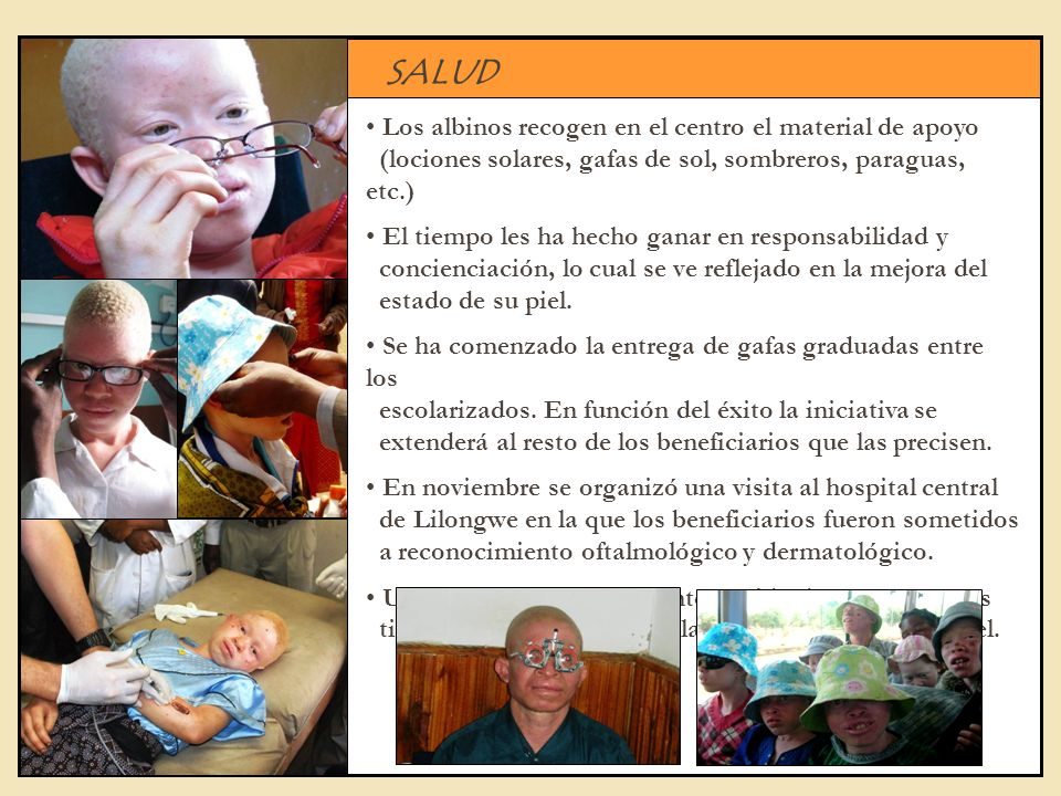 SALUD Los albinos recogen en el centro el material de apoyo