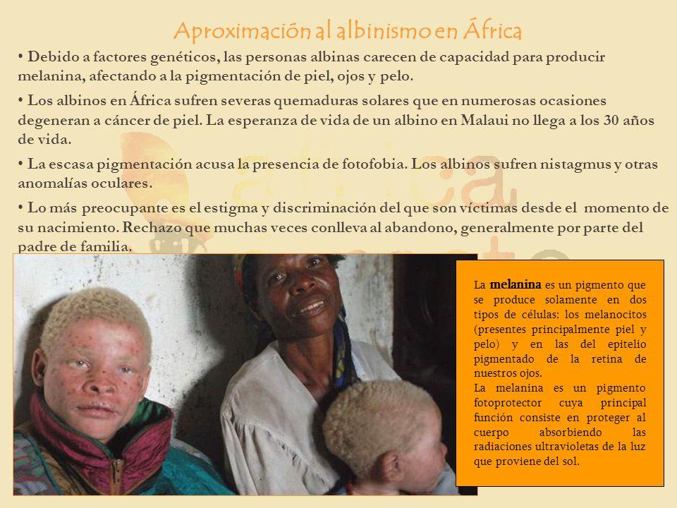 Aproximación al albinismo en África