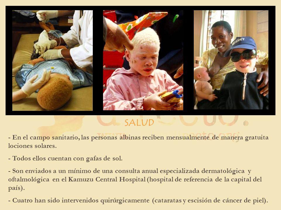 SALUD- En el campo sanitario, las personas albinas reciben mensualmente de manera gratuita lociones solares.