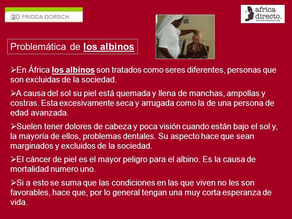 Problemática de los albinos