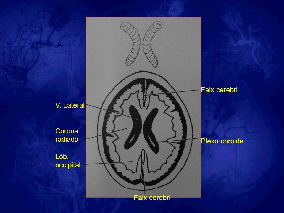 Falx cerebri Plexo coroide V. Lateral Corona radiada Lób. occipital Falx cerebri