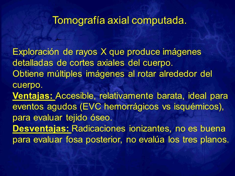 Tomografía axial computada.