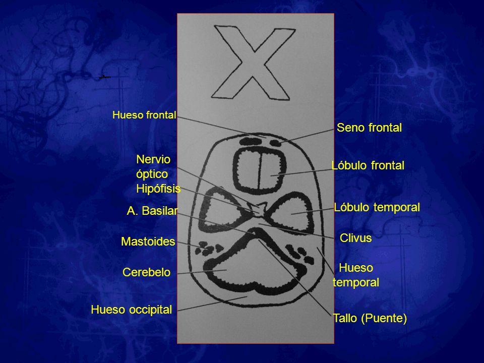 Seno frontal Nervio óptico Lóbulo frontal Hipófisis Lóbulo temporal